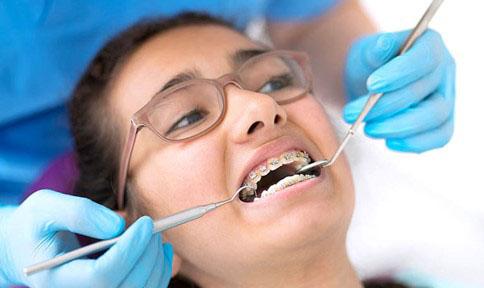 Việc tháo niềng răng sớm cần phải thông qua chỉ định của bác sĩ