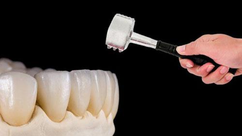 Độ chịu lực răng sứ cao