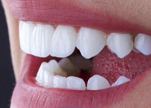 Răng sứ Zirconia sở hữu nhiều ưu điểm nổi bật