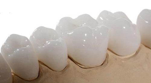 Vẻ đẹp hoàn mỹ của răng sứ Zirconia