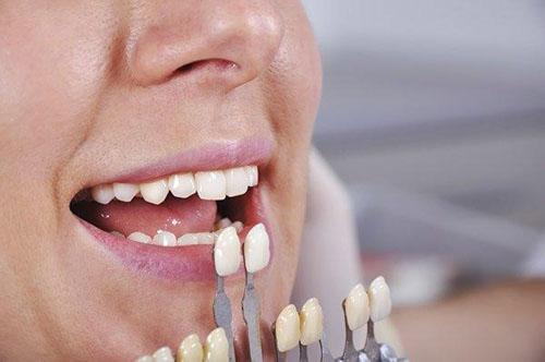 Bọc răng sứ cải thiện thẩm mỹ răng khiếm khuyết