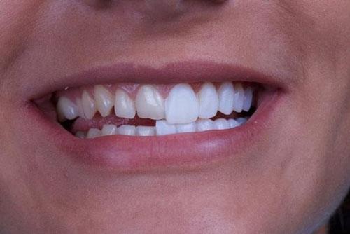 Bọc răng sứ cải thiện thẩm mỹ