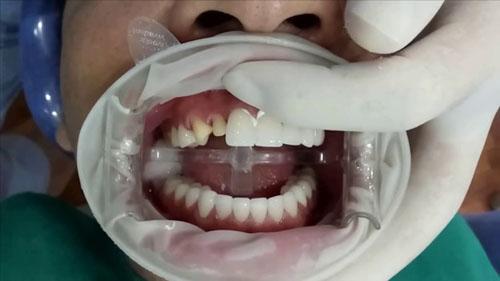Bọc răng sứ cần mài răng thật