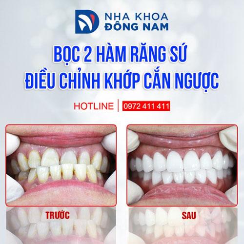 Bọc răng sứ cho bệnh nhân bị móm do răng