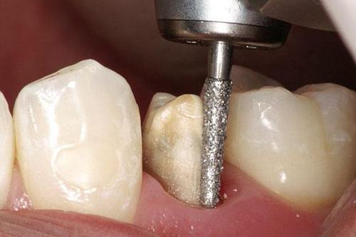 Bọc răng sứ có đau như tưởng tượng