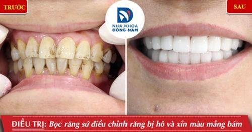 Bọc răng sứ khắc phục tình trạng răng hô nhẹ