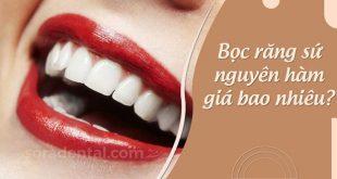 Bọc răng sứ nguyên hàm giá bao nhiêu?