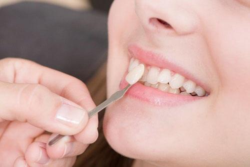 Bọc răng sứ sở hữu nhiều ưu điểm