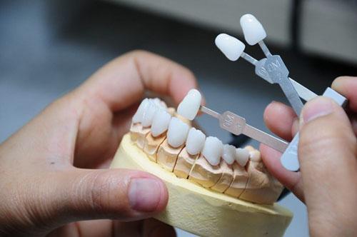 Bọc răng sứ thẩm mỹ cải thiện khuyết điểm trên răng