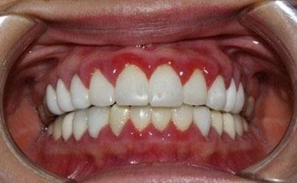 Bọc răng sứ vẫn bị viêm lợi