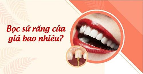 Bọc sứ răng cửa giá bao nhiêu?