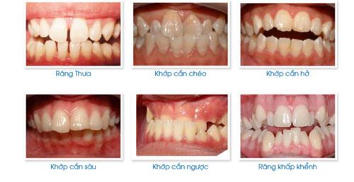 Các trường hợp có thể niềng răng mắc cài 3M UGSL