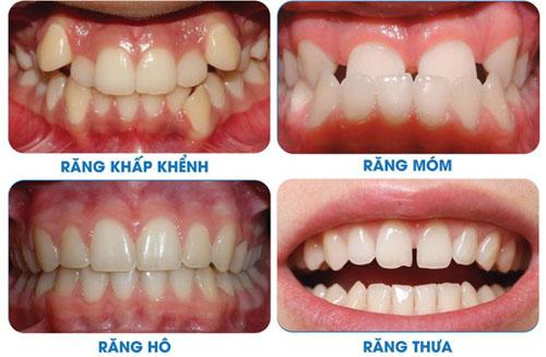 Các trường hợp nên niềng răng chỉnh nha
