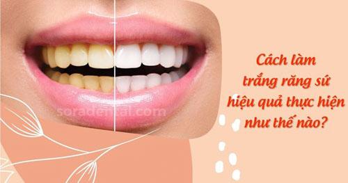 Cách làm trắng răng sứ hiệu quả thực hiện như thế nào?