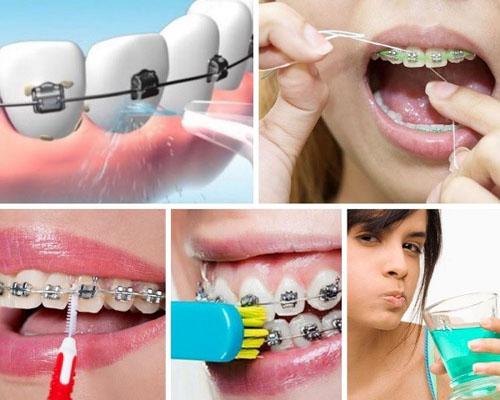Cách vệ sinh răng miệng khi niềng răng hiệu quả