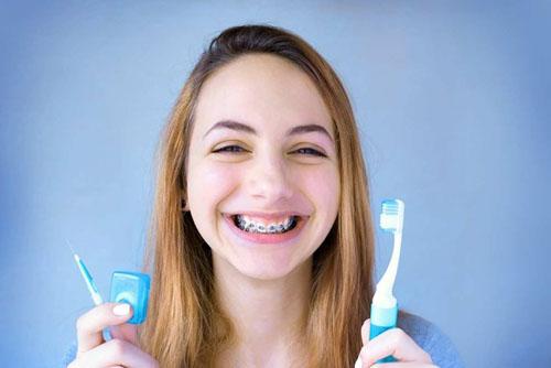 Cần chú ý vệ sinh răng niềng kỹ lưỡng