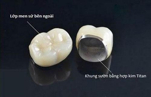 Cấu tạo răng sứ Titan