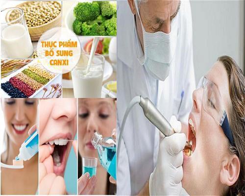 Chăm sóc răng sứ sau khi thực hiện