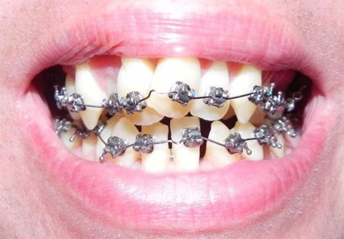 Chân răng bị lệch khi niềng răng
