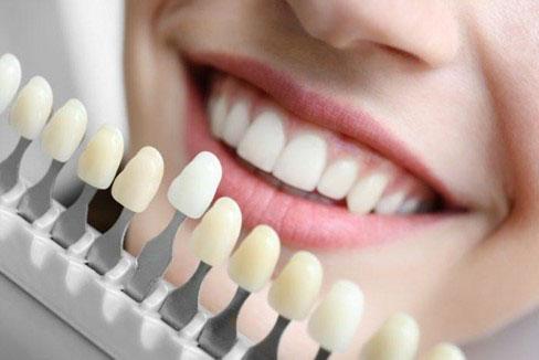 Chất liệu răng sứ quyết định chi phí
