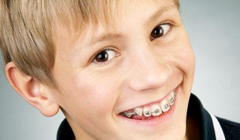 Chi phí niềng răng ở trẻ phụ thuộc nhiều yếu tố