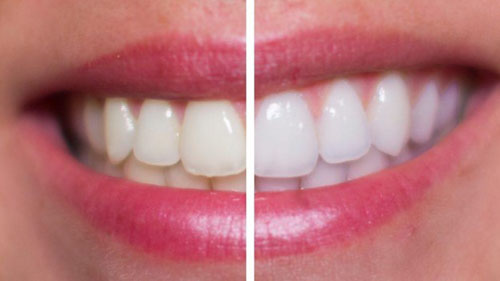 Chi phí răng sứ Cercon phụ thuộc nhiều yếu tố