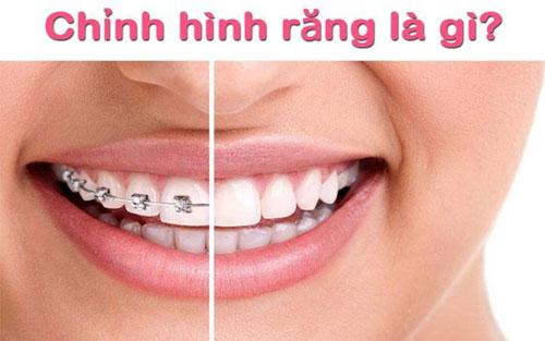 Chỉnh hình răng là gì?