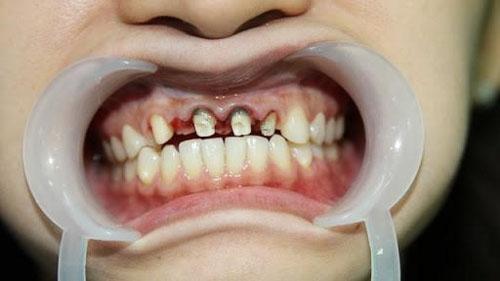 Chữa tủy cân chỉnh các trường hợp răng mọc lệch