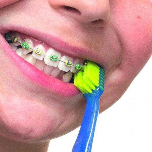 Dùng bàn chải chuyên dụng cho răng niềng có đầu lông mềm