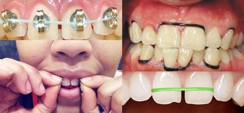 Dụng cụ kéo răng hô tự chế