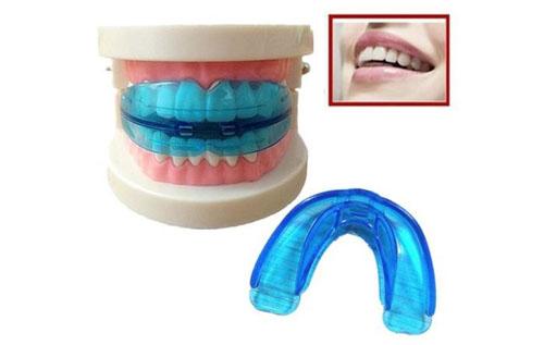 Dụng cụ niềng răng tháo lắp được rao bán trên các trang mạng