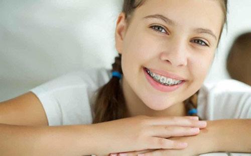 Gia đoạn 12 – 16 tuổi là thời điểm tốt nhất để chỉnh hình răng
