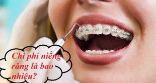 Giá niềng răng rẻ nhất là bao nhiêu tiền?