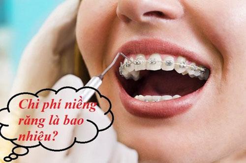 Giá niềng răng rẻ nhất là bao nhiêu?