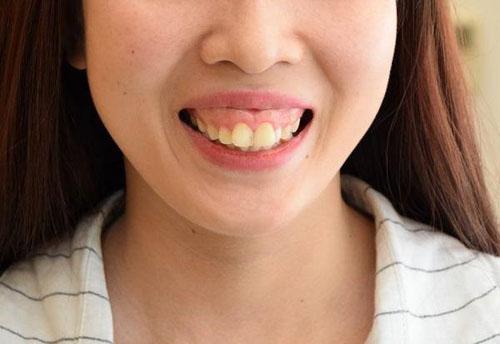 Hàm hô ảnh hưởng nghiêm trọng đến thẩm mỹ của gương mặt