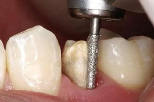 Hạn chế mài răng, xâm lấn răng thật