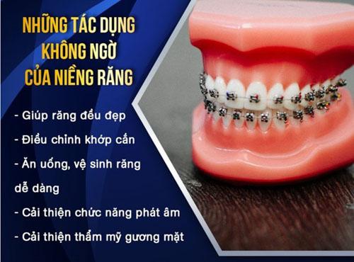 Hiệu quả niềng răng mang lại