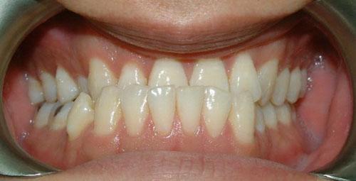 Hình ảnh răng móm