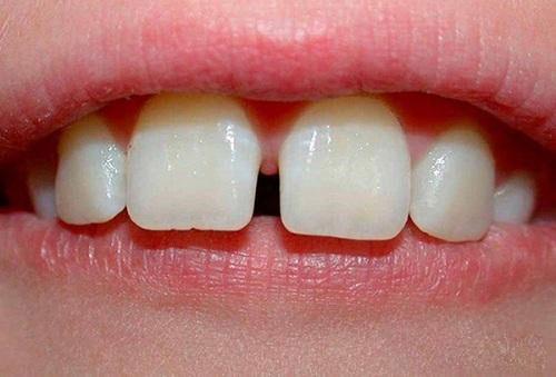 Hình thể răng không như mong muốn