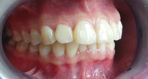 Hô do hàm cần tiến hành phẫu thuật hàm để khắc phục hiệu quả
