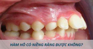 Hô hàm có niềng răng được hay không?