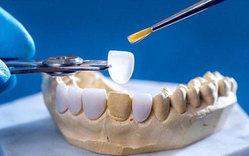 Keo dán răng sứ nha khoa giá bao nhiêu?
