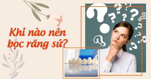 Khi nào nên bọc răng sứ?