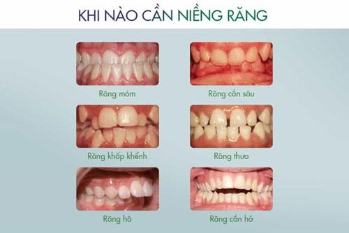 Khi nào nên niềng răng?