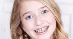 Kinh nghiệm niềng răng thưa an toàn hiệu quả và tiết kiệm