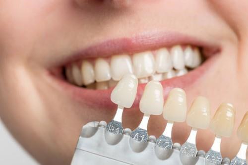 Làm trắng răng sứ bị xỉn màu có được không?