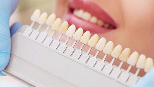 Lựa chọn bảng màu răng sứ phù hợp