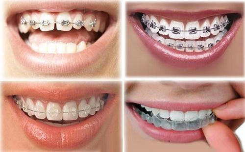 Lựa chọn phương pháp niềng răng thưa phù hợp