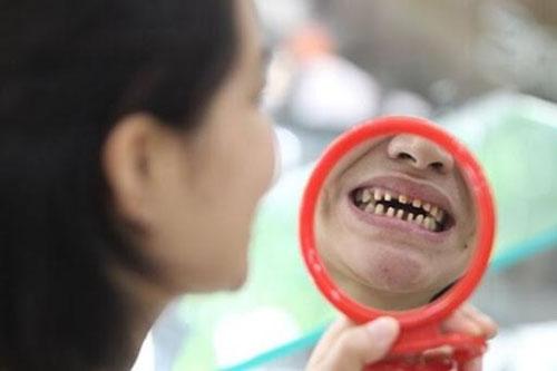 Lưu ý sau khi điều trị tủy răng bọc sứ