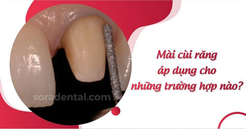 Mài cùi răng áp dụng cho những trường hợp nào?
